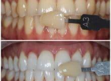 ingrijirea-si-albirea-dintilor